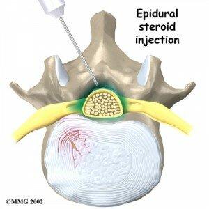 1 benh dau lung2 300x300 Điều trị đau lưng bằng nắn chỉnh khớp xương có tốt cho bạn?