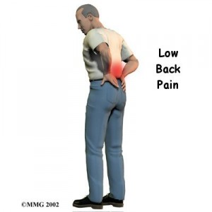 1 dieu tri benh dau lung2 300x300 Đau lưng và đau vùng chậu sau khi cắt bỏ tử cung