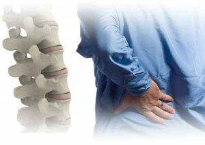 1 nguyen nhan gay dau lung2 300x212 Tập thể hình có làm cho đau lưng càng nghiêm trọng thêm?