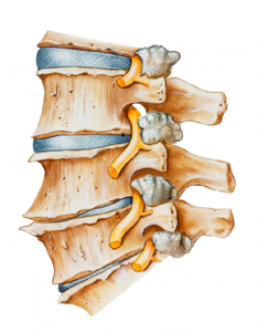 1 thoat vi dia dem 234x300 Thoát vị đĩa đệm thắt lưng–Triệu chứng, phương pháp điều trị