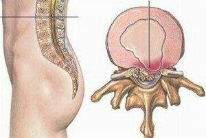 Các triệu chứng của thoát vị đĩa đệm thắt lưng