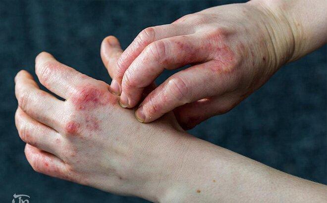 Biểu hiện ngứa ngáy viêm da ở người bệnh chàm