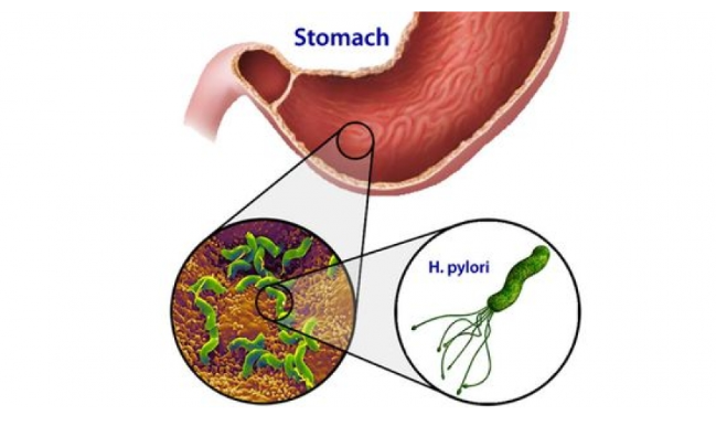Chẩn đoán viêm loét dạ dày do nhiễm khuẩn