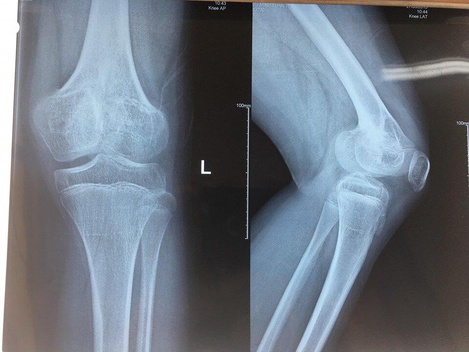 Chụp X - Quang chẩn đoán đau thần kinh tọa