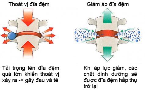 Điều trị thoát vị đĩa đệm bằng phương pháp giảm áp