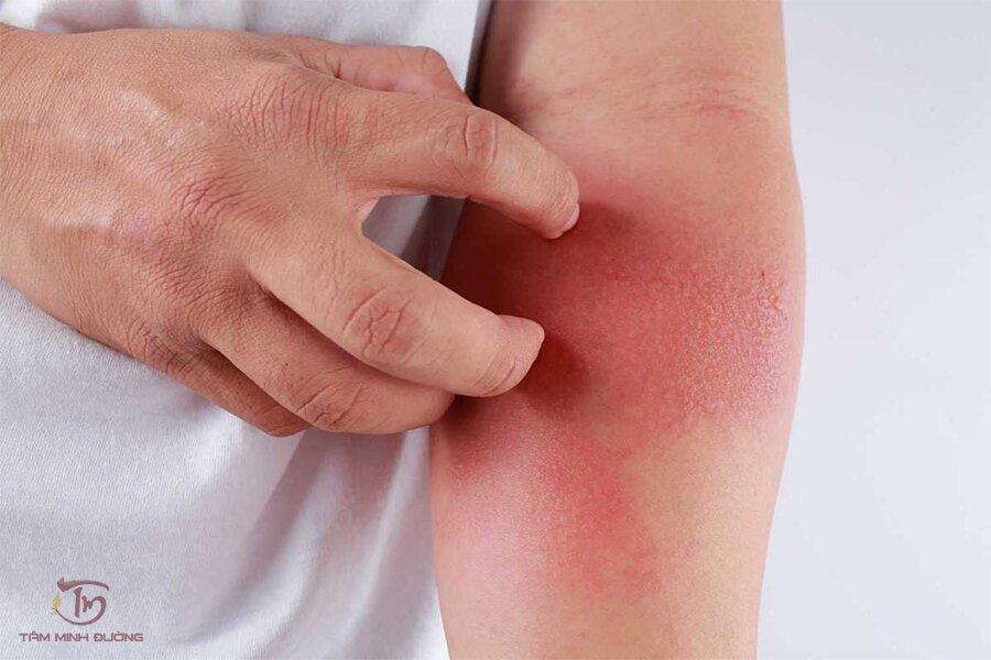 Hình ảnh bệnh eczema ở bệnh nhân