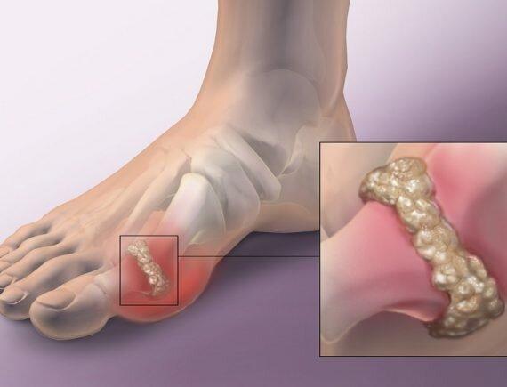 Hình ảnh bệnh gout ở bệnh nhân