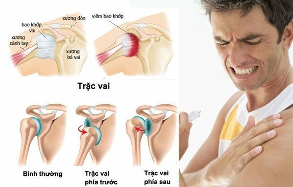 Hình ảnh đau khớp vai ở bệnh nhân