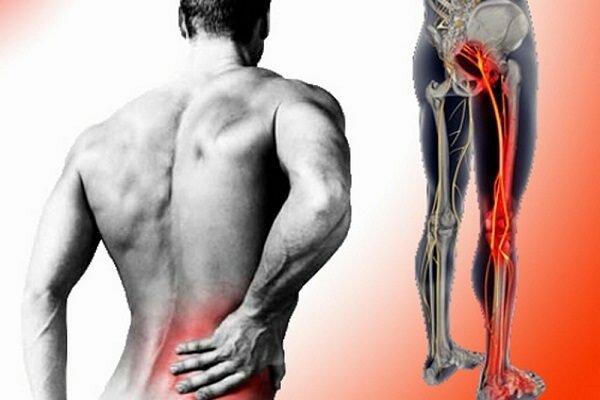 Hình ảnh bệnh nhân bị đau lưng bên phải