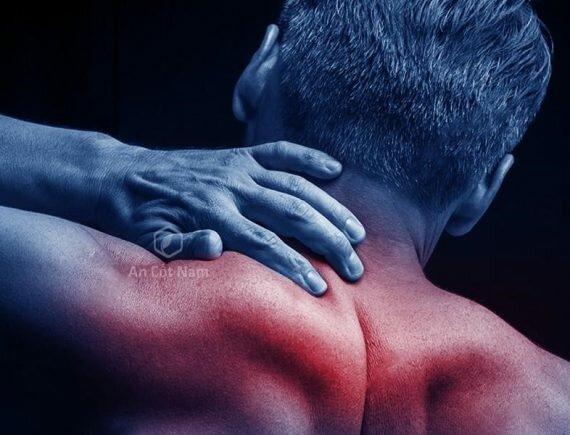 Hình ảnh đau vai gáy ở bệnh nhân