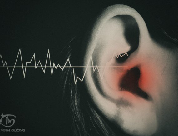 Hình ảnh ù tai ở bệnh nhân