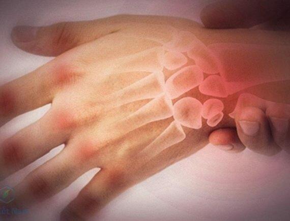 Hình ảnh viêm đau khớp ngón tay, cổ tay ở người bệnh