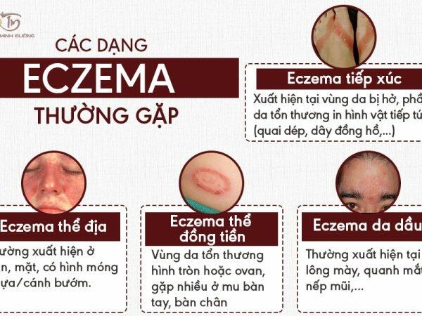 Triệu chứng của bệnh eczema ở các dạng thường gặp