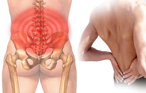 Triệu chứng đau thắt lưng