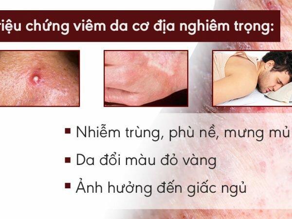 Một số triệu chứng của bệnh viêm da cơ địa thể hiện mức độ nghiêm trọng của bệnh lý