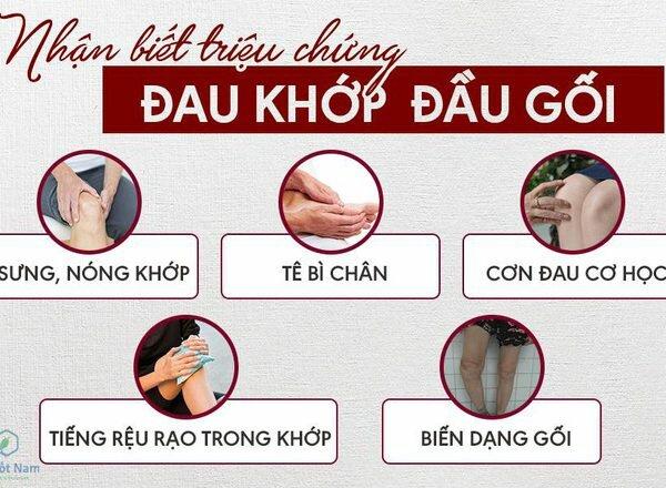 Một số triệu chứng viêm đau khớp gối kèm theo khác
