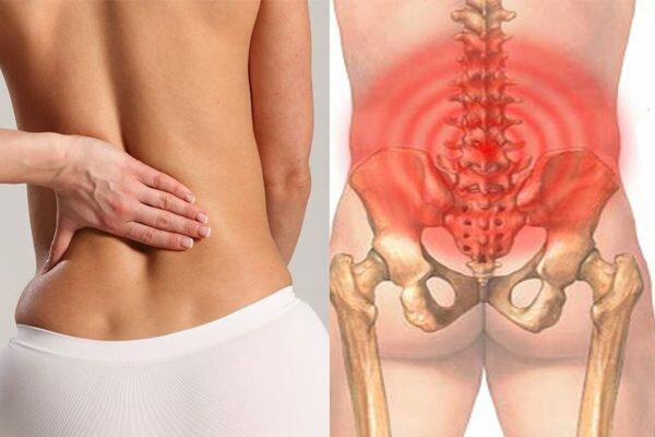 Hình ảnh đau lưng dưới