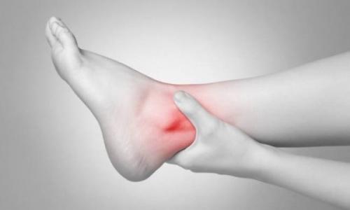 Tình trạng viêm đau khớp cổ chân ở bệnh nhân