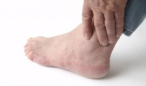 Nguyên nhân gây viêm khớp cổ chân