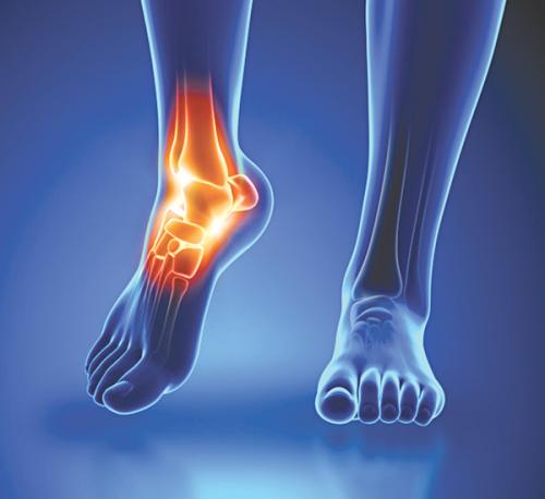 Hậu quả của viêm khớp cổ chân