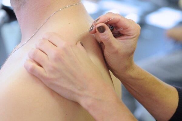 Châm cứu chữa đau mỏi sau gáy