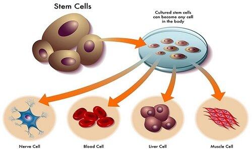 Chữa thoát vị đĩa đệm bằng tế bào gốc là phương pháp điều trị mới