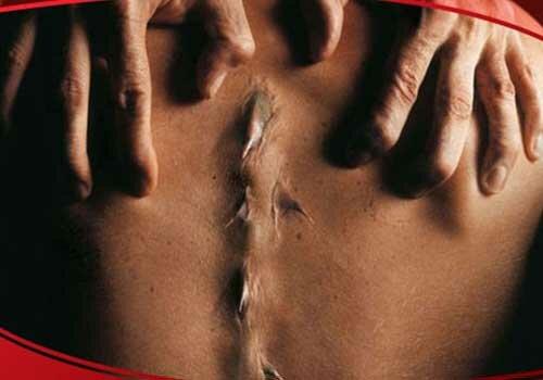 Cách chữa trị gai cột sống