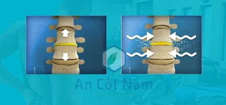 Kéo giãn cột sống chữa thoát vị đĩa đệm
