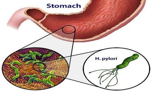 Vi khuẩn Hp dạ dày rất dễ lây lan