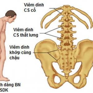 Hình ảnh viêm cột sống dính khớp ở bệnh nhân